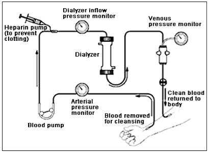 Process Of Dialysis